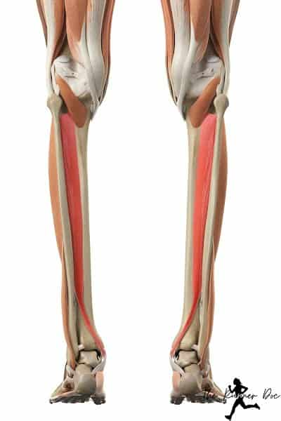 Fix posterior tibial tendon dysfunction in runners