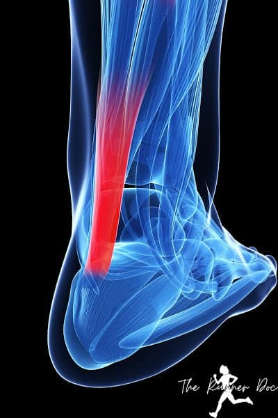 Pain in the achilles tendon or heel from achilles tendinitis, fix achilles tendinopathy